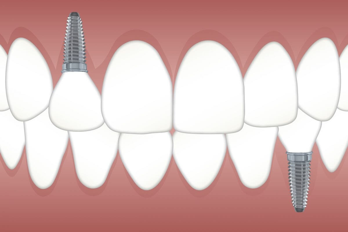 Dental Implants: The Comprehensive Tooth Replacement